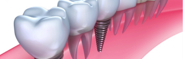 Dental Implants Rockville MD